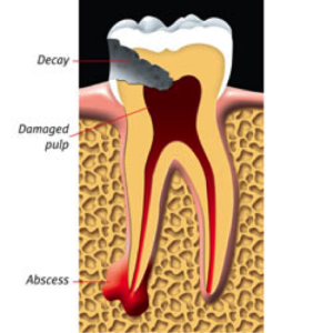 root-canal-kingston-dentist-westwoods-dental-abscessed-tooth