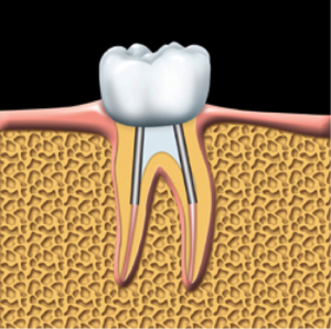 root-canal-kingston-dentist-westwoods-dental-crown-is-cemented-into-place