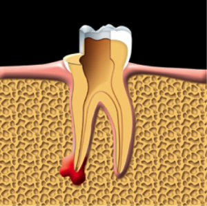 root-canal-kingston-dentist-westwoods-dental-damaged-pulp-is-removed