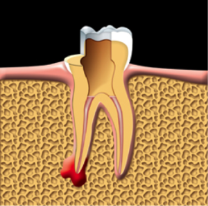 root-canal-kingston-dentist-westwoods-dental-root-canals-are-filled-and-sealed